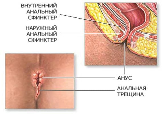 Анальный секс видео урок - dnvidov.ru