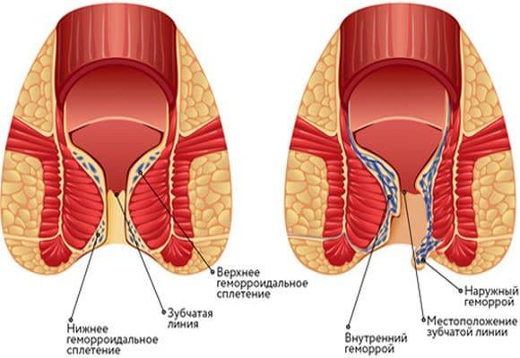 Как избавиться от геморройной шишки