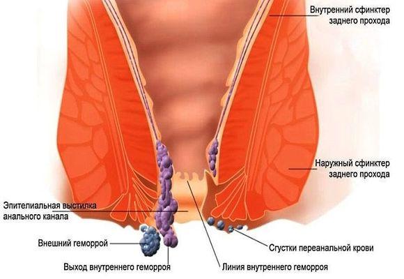 После лечения геморроя остался узелок