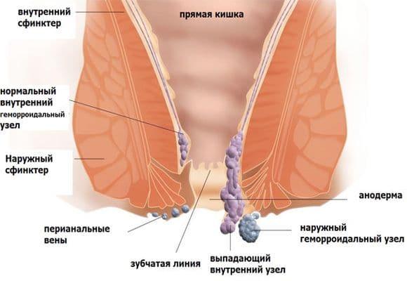Лечение миомы матки неоперативными методами