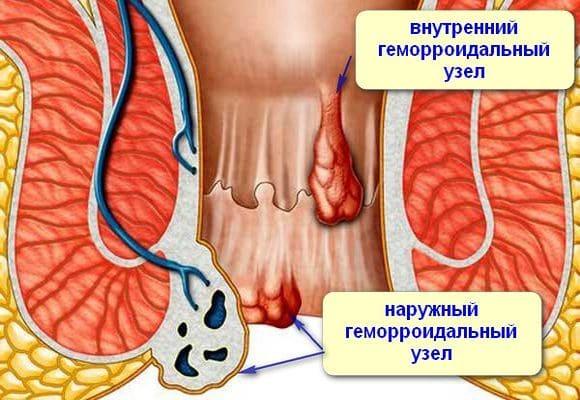 геморрой наружный и внутренний узел
